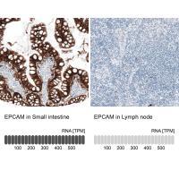 Immunohistochemistry analysis in human s