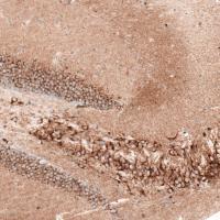 Immunohistochemical staining of mouse hi