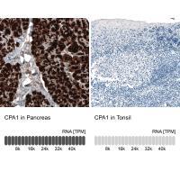 Immunohistochemistry analysis in human p