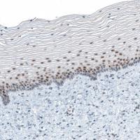 Immunohistochemical staining of human ut