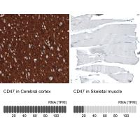 Immunohistochemistry analysis in human c