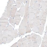 Immunohistochemical staining of human sk