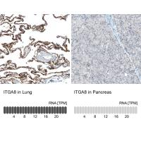 Immunohistochemistry analysis in human l