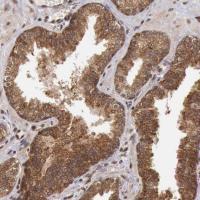 Immunohistochemical staining of human pr