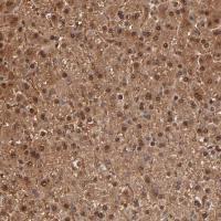 Immunohistochemical staining of human li