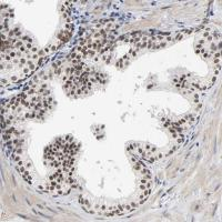 Immunohistochemical staining of human pr