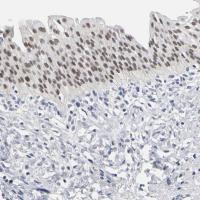 Immunohistochemical staining of human ur