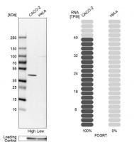Western blot analysis in human cell line