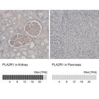 Immunohistochemistry analysis in human k