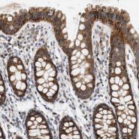 Immunohistochemical staining of human co