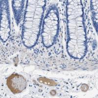 Immunohistochemical staining of human co