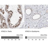 Immunohistochemistry analysis in human t
