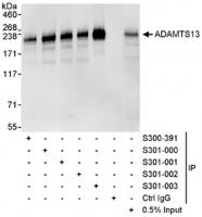 Detection of human ADAMTS13 by western b