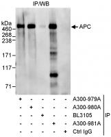 Detection of human APC by western blot o