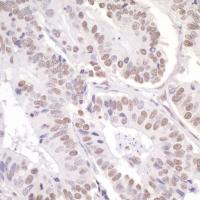 Detection of human ASC2 by immunohistoch