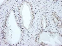 Detection of human ASH2 by immunohistoch