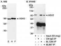Detection of human ASH2 by western blot