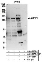 Detection of human ASPP1 by western blot
