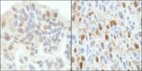 Detection of human and mouse ASPP2 by im
