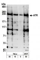 Detection of human ATR by western blot.
