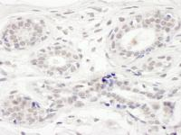 Detection of human BRD8 by immunohistoch