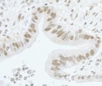 Detection of human CARM1 by immunohistoc