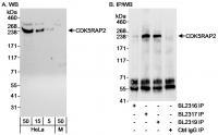 Detection of human CDK5RAP2 by western b