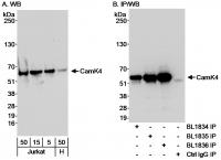 Detection of human CamK4 by western blot