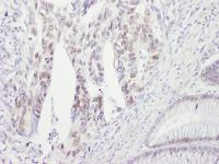 Detection of human CHK2 by immunohistoch