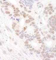 Detection of human DDX24 by immunohistoc