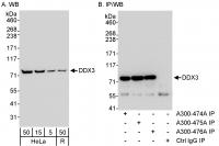 Detection of human DDX3 by western blot