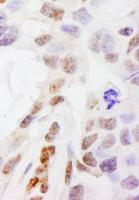 Detection of human DHX38 by immunohistoc
