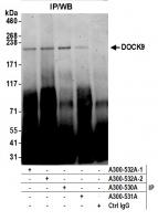 Detection of human DOCK9 by western blot