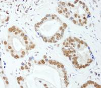 Detection of human E1B-AP5 by immunohist