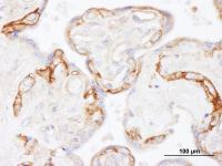 Detection of human EGFR by immunohistoch