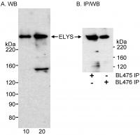 Detection of human ELYS by western blot