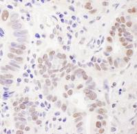 Detection of human EMSY by immunohistoch