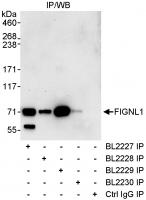 Detection of human FIGNL1 by western blo