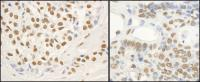 Detection of human and mouse FUS by immu