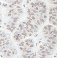 Detection of human GNL3 by immunohistoch