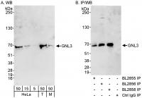 Detection of human and mouse GNL3 by wes