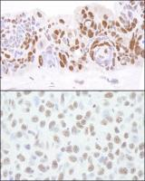 Detection of human and mouse HDAC1 by im