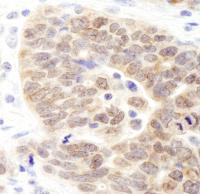 Detection of human JMJD1B by immunohisto