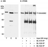 Detection of human KIAA0082 by western b