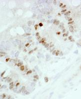 Detection of mouse Ki-67 by immunohistoc