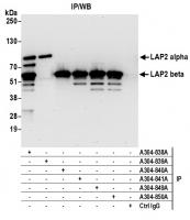 Detection of human LAP2 alpha and beta b
