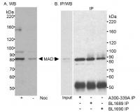 Detection of human MAD1 by western blot