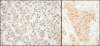 Detection of human MCAK by immunohistoch