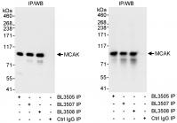 Detection of human MCAK by western blot