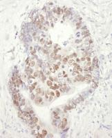 Detection of human MCM3 by immunohistoch